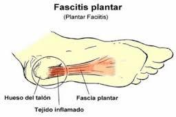 Fascitis plantar en el padel